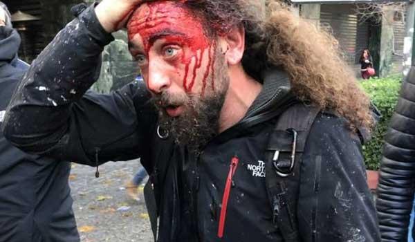 Καταγγελία για δολοφονική επίθεση διαδηλωτών εναντίων φωτορεπόρτερ