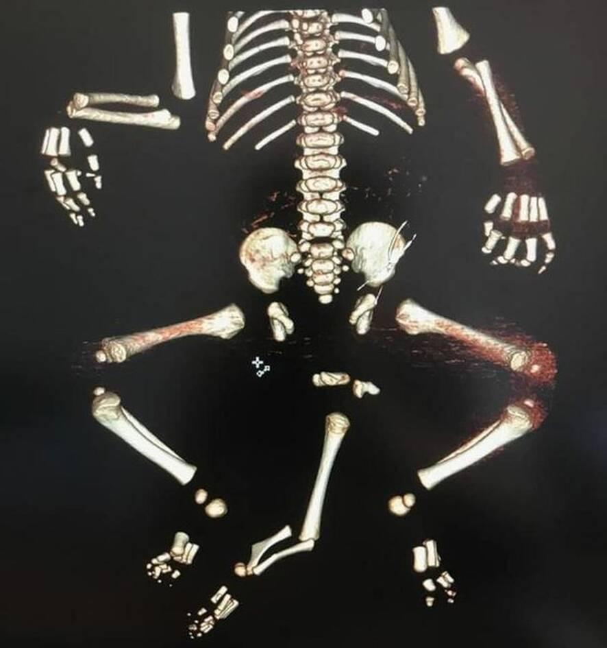 Αγοράκι γεννήθηκε με τρία πόδια και δύο ουρήθρες