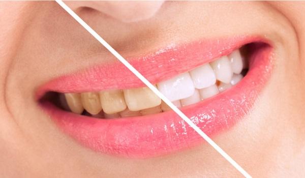 Πώς να αποκτήσετε ολόλευκα δόντια με φυσικό τρόπο