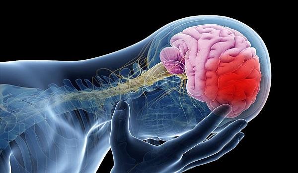 """Ανεύρυσμα εγκεφάλου: Μην αγνοήσετε τα πρώτα """"αθώα"""" συμπτώματα"""