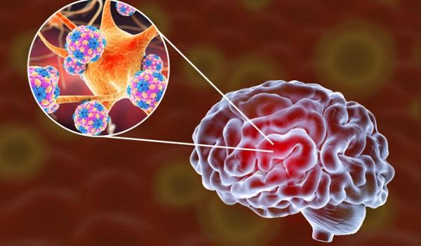 Εγκεφαλίτιδα: Η «ύπουλη» φλεγμονή του εγκεφάλου - Ποια τα πρώτα συμπτώματα