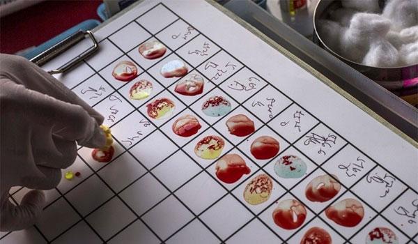 Πειραματικό τεστ αίματος ανιχνεύει οποιονδήποτε καρκίνο μέσα σε 10 λεπτά!