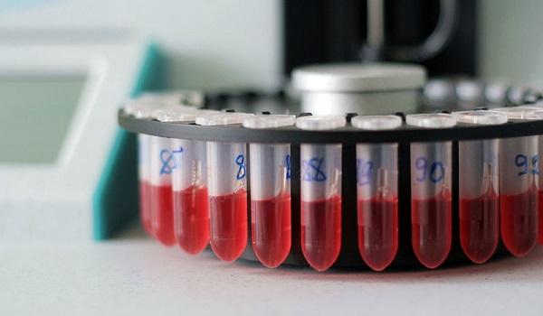 Αυξημένα λευκά αιμοσφαίρια: Δείτε τι σημαίνει ο δείκτης