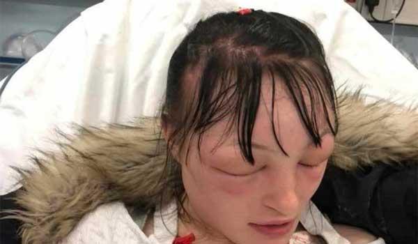Μητέρα κατέληξε στο νοσοκομείο από βαφή μαλλιών. Βίντεο