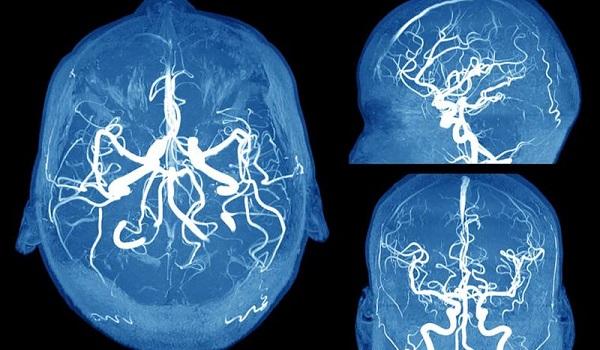 Ανεύρυσμα εγκεφάλου: Τα συμπτώματα SOS που πρέπει να γνωρίζετε