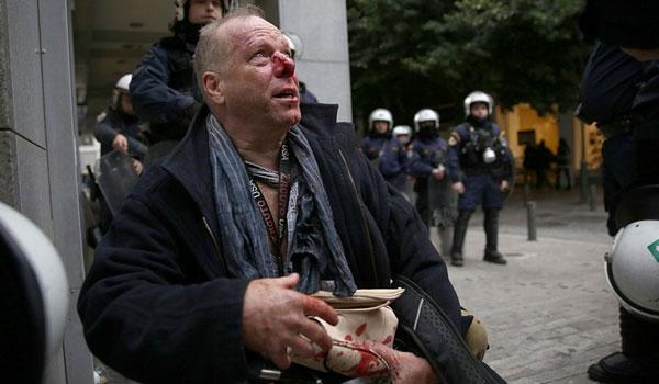 Βίντεο από τη στιγμή της επίθεσης στον δημοσιογράφο της Deutsche Welle