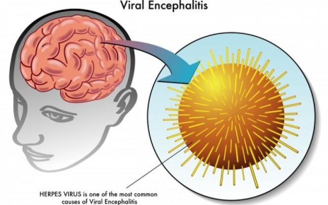 Εγκεφαλίτιδα: Από τι προκαλείται και πώς αντιμετωπίζεται