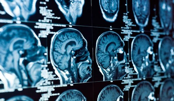 """Ζωή μετά το θάνατο: Επιστήμονες """"ανέστησαν"""" νεκρό εγκέφαλο τέσσερις ώρες μετά!"""