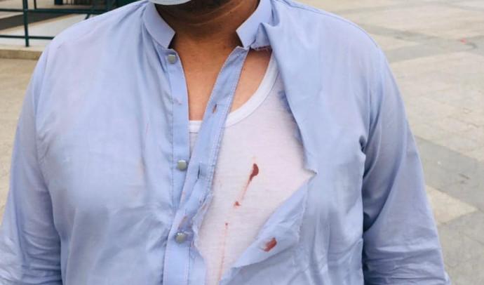 Επίθεση με μαχαίρι σε Βρετανία και Βέλγιο, πέντε τραυματίες. Νεκρός ο ένας δράστης