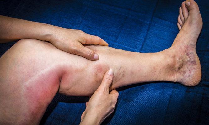Φλεβίτιδα: Ποια συμπτώματα θα προσέξετε