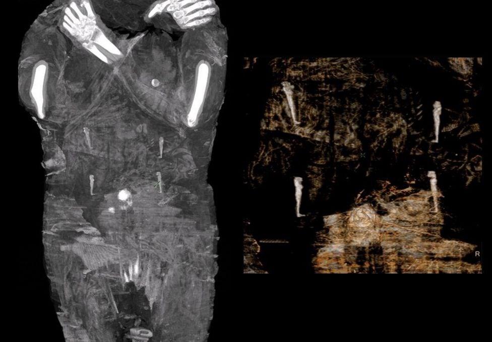 Αρχαιολόγοι ανακάλυψαν την πρώτη έγκυο αιγυπτιακή μούμια - ATnews