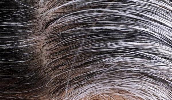 Βρέθηκε ο λόγος που τα μαλλιά μπορεί να ασπρίσουν σε μια νύχτα