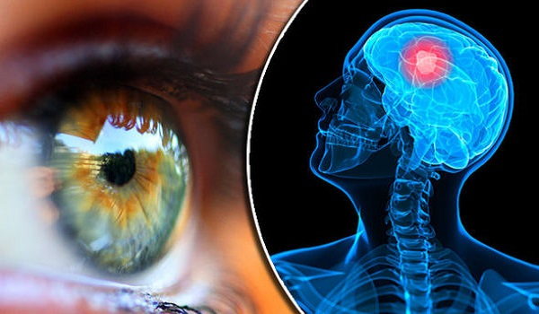 Νόσος Αλτσχάιμερ: Το σημείο του σώματος που αποκαλύπτει τον κίνδυνο από νεαρή ηλικία