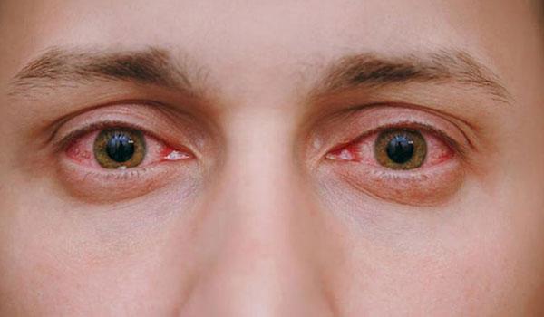 Δασικές πυρκαγιές: Πως επηρεάζει ο καπνός τα μάτια – Τι να κάνετε