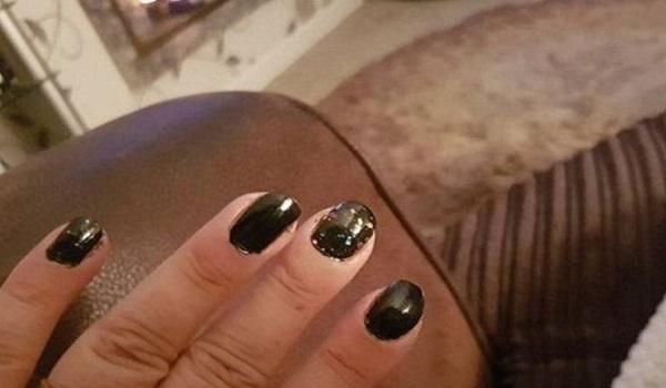 Βρετανία: Τα άσχημα νύχια της πρόδωσαν τον καρκίνο