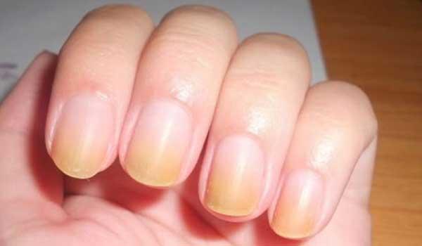 Πέντε μυστικά για κάτασπρα νύχια