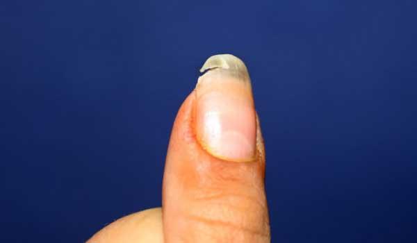 Πέντε λόγοι που σπάνε τα νύχια σας και τι μπορείτε να κάνετε