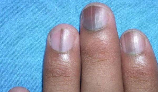 Δες πώς θα διορθώσεις τα χαλασμένα σου νύχια μέσα σε 5 λεπτά