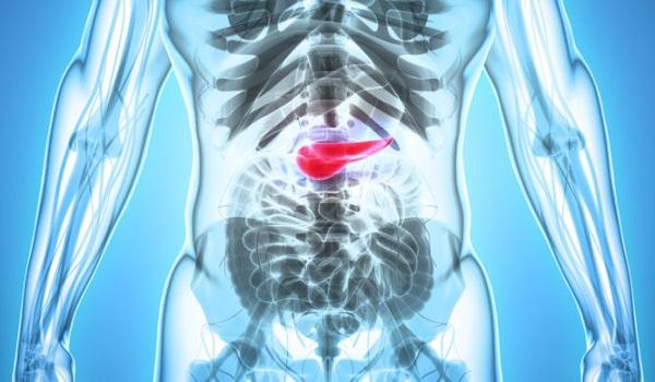 Καρκίνος στο πάγκρεας: Προσοχή στα πρώτα «αθώα» συμπτώματα
