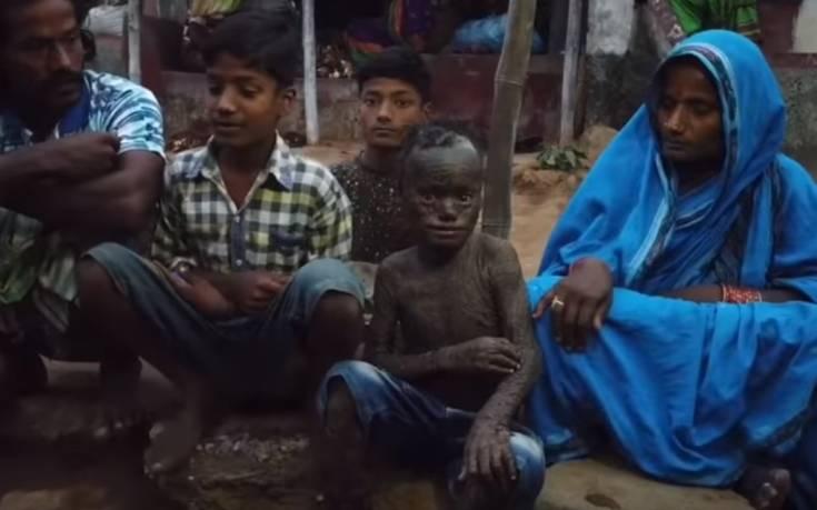 Δεκάχρονο αγόρι με δέρμα φιδιού: Η σπάνια ασθένεια και οι σοκαριστικές εικόνες