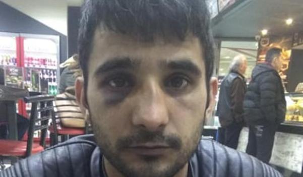 Καταγγελία της ΚΕΕΡΦΑ για άγριο ξυλοδαρμό μετανάστη από αστυνομικούς της ΔΙΑΣ