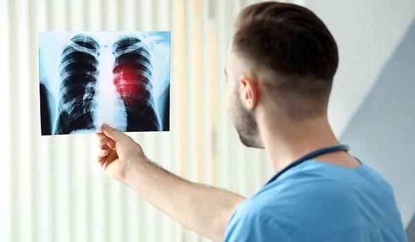 Καρκίνος του πνεύμονα: Το σύμπτωμα που δεν πρέπει να αγνοήσετε