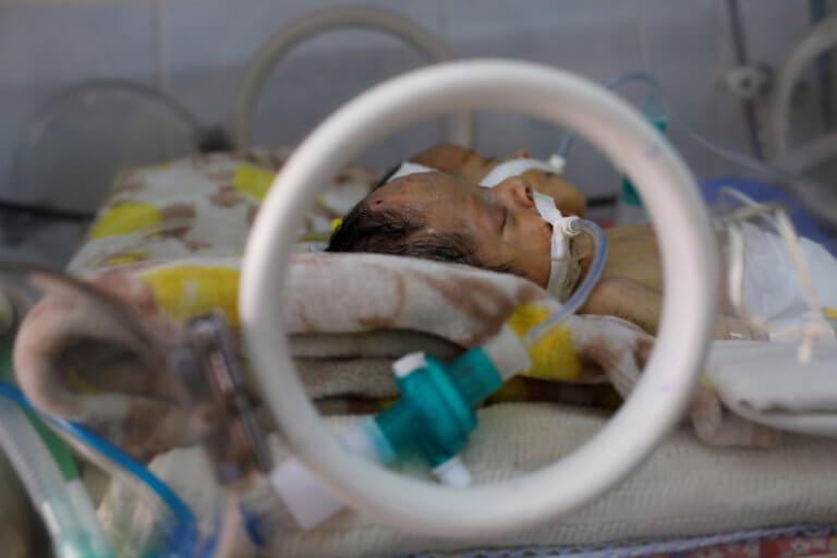 Πέθαναν τα σιαμαία βρέφη στην Υεμένη. Δεν άνοιξαν τα σύνορα για να χειρουργηθούν