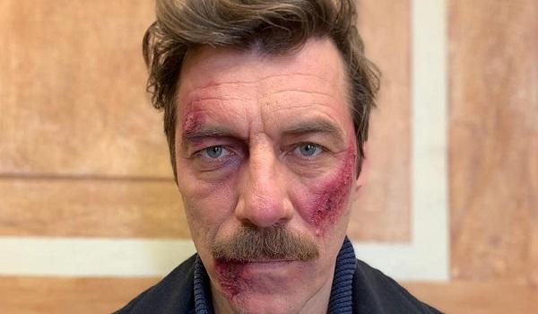 Γιάννης Στάνκογλου: Πονάνε τα παλικάρια ωρε - Τι συνέβη στον ηθοποιό από τις Άγριες Μέλισσες