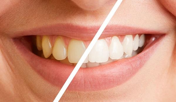 Στοματική υγεία: Κοινά λάθη και μύθοι για τη φροντίδα των δοντιών