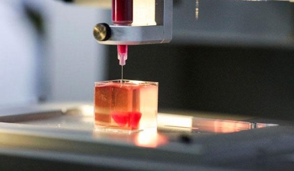 Επιστήμονες εκτύπωσαν καρδιά με αγγεία από ανθρώπινους ιστούς