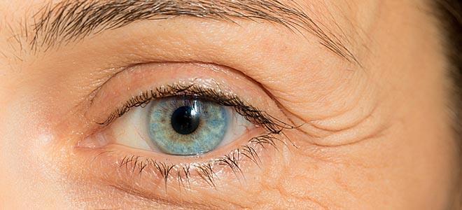 Εκτρόπιο: Τι συμβαίνει όταν το βλέφαρο γυρίζει προς τα έξω
